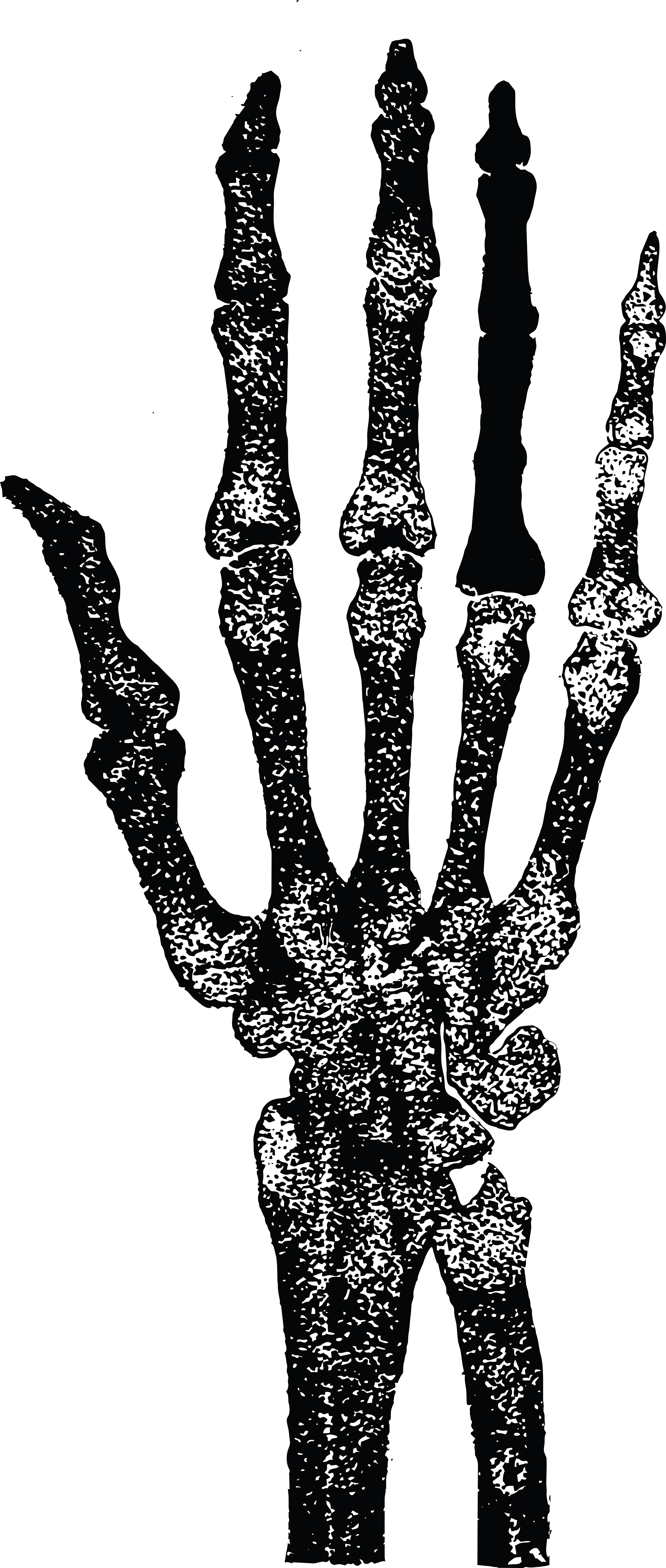 Free Clipart Of A Skeletal Hand